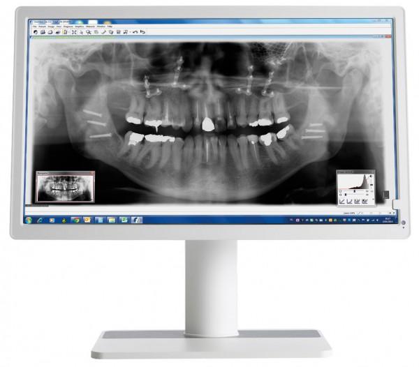 """Barco Nio MDNC-2123 DEWH, 23,6"""" Dental Befundungsmonitor"""